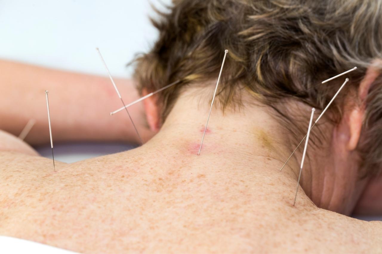 3 razões para idosos fazerem acupuntura